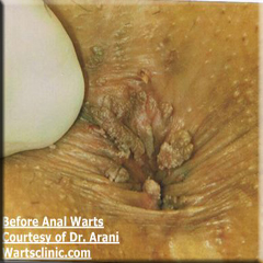 Anal warts smell